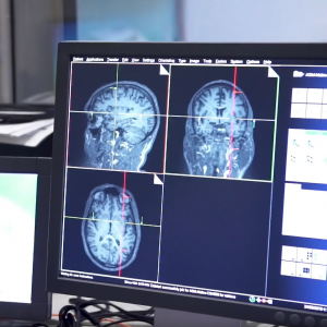 Brain Imaging Centre Research